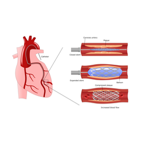 How Much Does a Heart Stent Cost?