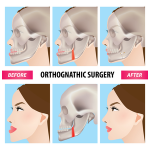 Jaw surgery - before and after picks